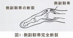 側副靭帯完全断裂