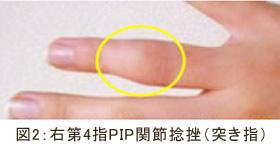 右第4指PIP関節捻挫(突き指)