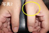 母指MP関節尺側側副靭帯損傷